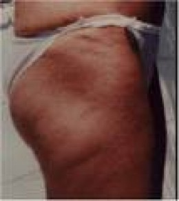 Before Target Toning thighs and buttocks