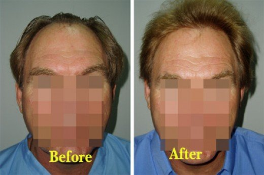 Hair transplantation is one of the most popular male plastic surgery procedures.