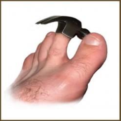 Hammer toe treatment and diagnosis