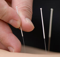 Acupuncture Can Be Very Effective Against Arthritis Pain