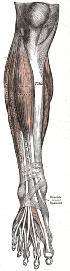 Be aware of symptoms involving legs and arms. (All images on this page, public domain.)