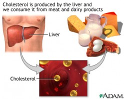 High Cholesterol? A Simple Chart for Healthy Foods and Diet May Help.