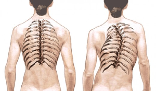Figure 1. An illustration of scoliosis (captured from http://www.bridwell-spinal-deformity.com/photos/spine_path/scoliosis_illus100.gif)