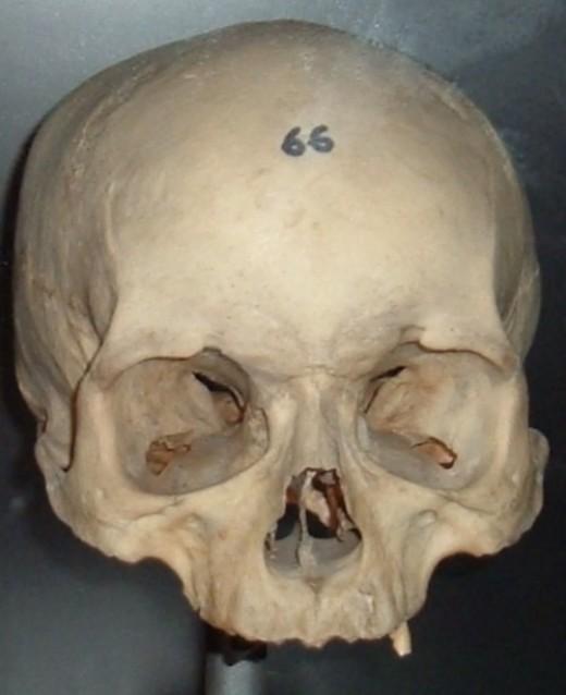 Guanche skull