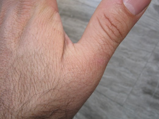 Hardly noticeable trace of the wart just behind the knuckle.