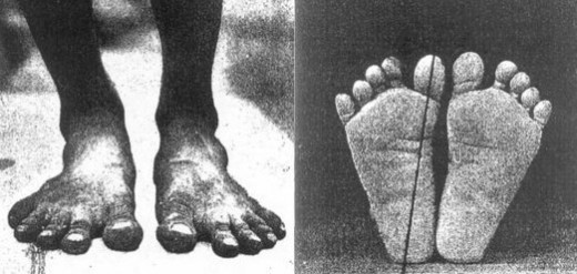 Feet of native barefoot populations