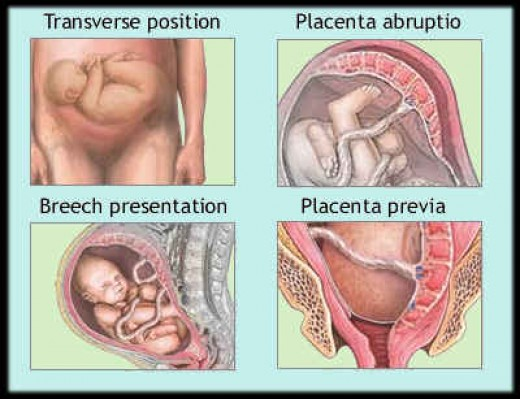 Positions of placenta previa
