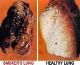 On left a lung with emphysema; on right healthy lung