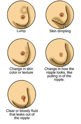 Pay attention to any changes within the appearance and/or health of your breast