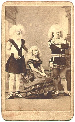 "Rudolph Lucasie & familiy, African albinos. PT Barnum found them in Amsterdam in 1857. He brought them to America to become the most popular ""living curiosities."" Barnum billed them as black Madagascans that slept with their pink eyes wide open. They"