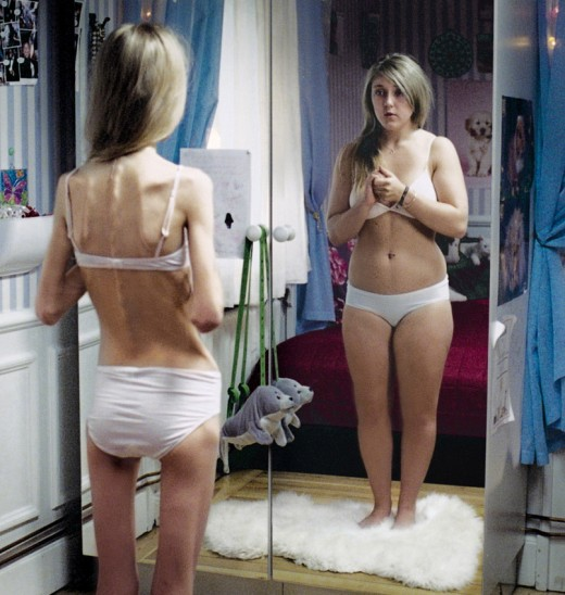 Anorexia is an extreme fear of gaining weight and a madness for losing weight.