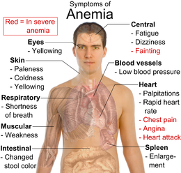 Symptoms of anemia - full chart