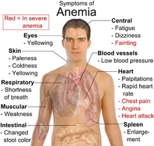 Symptoms of anemia - full chart