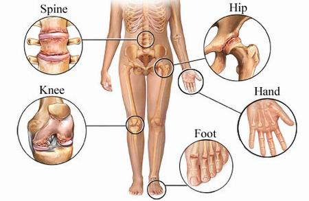 Arthritis can affect spine, hip, knee, hands, and foot joints.