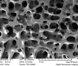 This is a scanning electron microscope image of a bone specimen from a young male: notice the honey-comb lattice appearance of the criss-crossed micro fibrils. Due to the age, the bone demonstrates a high density, which will provide a high tensile st