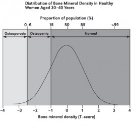 The normal distribution of BMD compared to women aged 30-40 years.  www.cmdrc.com/WomansHealthCareafterThirty/