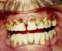 Carious teeth requiring dental attention-see before starting bisphosphonates ideally www.oralhealthproducts.com/caries.htm