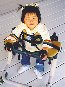 Child with RS (Google Images)