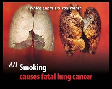 deceased-lungs caused by smoking