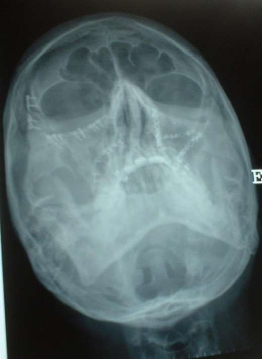 My skull X-ray after the surgery (upper view)