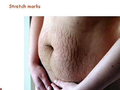 Post Pregnancy Stretch Marks