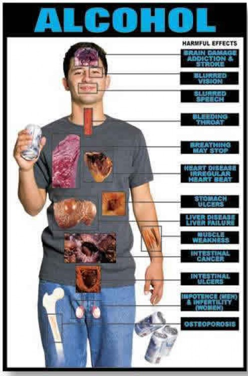 Alcoholic liver disease is the major cause of liver disease in Western countries