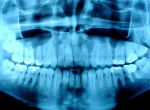 You have a lot of teeth - you're going to need some supplemental dental insurance.