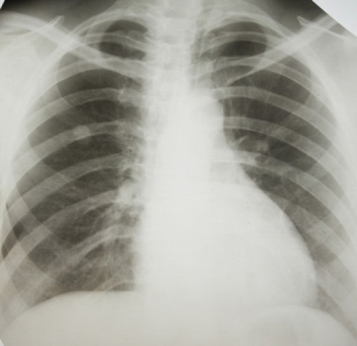 An x-ray taken of a patient with mesothelioma cancer.