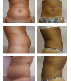 What To Do After Cosmetic Surgery....Post Op Instruction...Liposuction, Tummy Tuck