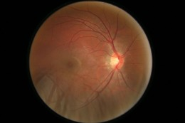 I spy with my little eye!    This is the fundoscopic image of a normal right eye. Well I hope its normal because it is my right eye!   You can see the optic disc has a clear border, no tortuous blood vessels, no exudates (deposits of fats/lipids-cott
