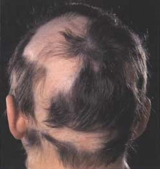 alopecia disorder pic
