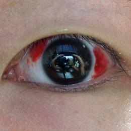An eye after LASIK surgery.