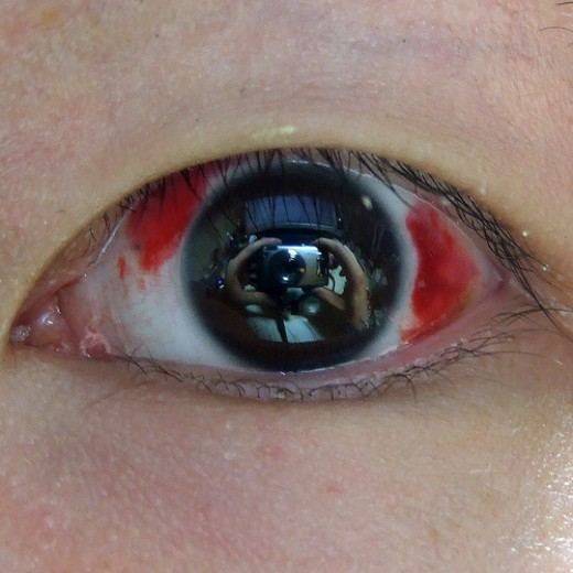 An eye after LASIK surgery.
