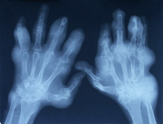 Medical Image of Rheumatoid Arthritis