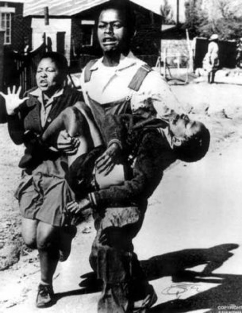 The scar of apartheid...