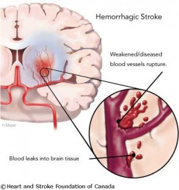 Stroke Caused by Hemorrhage