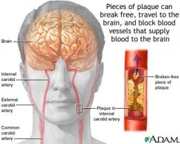Stroke Caused by Blockage