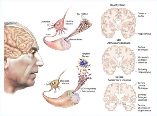 The medical illustration is provided courtesy of Alzheimer's Disease Research, a program of BrightFocus Foundation.