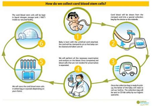 Learn how doctors collect cord blood stem cells