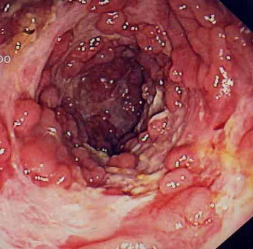 Crohn's disease as seen through an endoscope