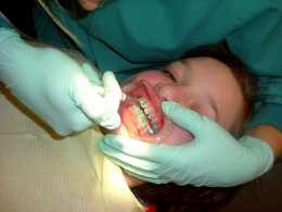 Patient being operated, for placement of braces.