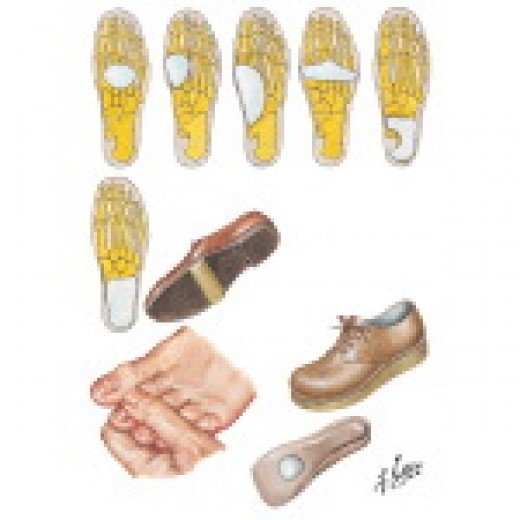 The Doctor may give you orthotics for your shoes.