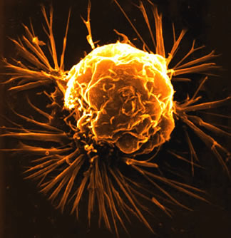 They may look pretty, but they are deadly cancer cells