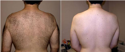 Before and After the laser back hair removal treatment