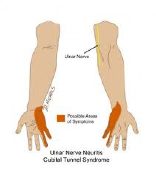 Your brief guide to cubital tunnel syndrome