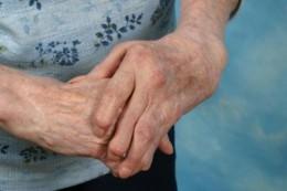 Rheumatoid Arthritis arxmanhealth.com
