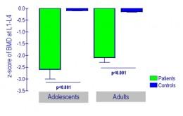 Interpreting Bone Density Z Score