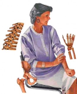 osteoporosis - a dillemma for older women