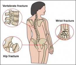osteoporosis common fracture sites