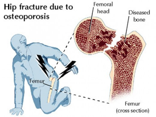 Hip fractures caused by osteoporosis